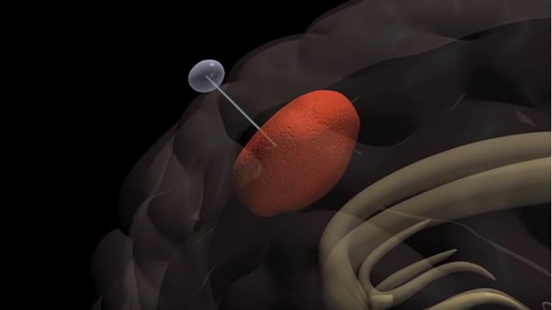 اختراق كبير وغير مسبوق في علاج السرطان