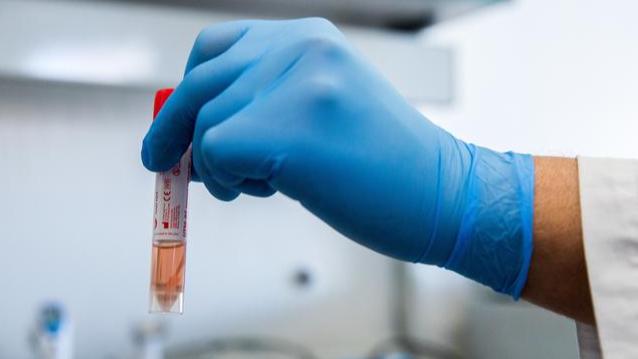 فاوتشي: نتائج لقاح موديرنا المضاد لكورونا رائعة