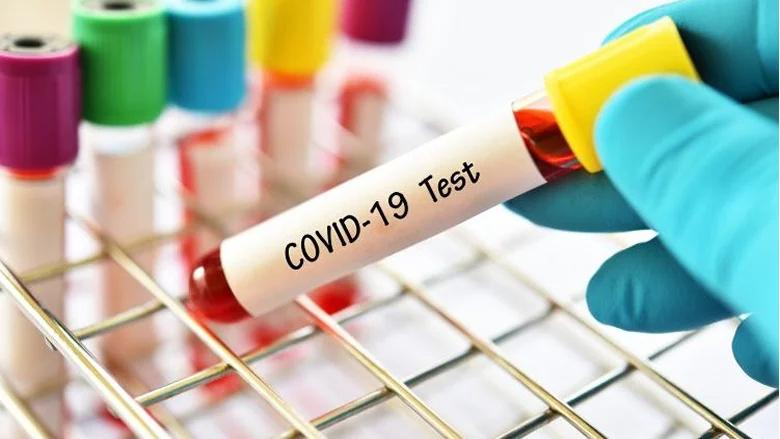 """خلية الأزمة في قضاء المنية الضنية: تسجيل 16 إصابة جديدة بـ""""كورونا"""""""