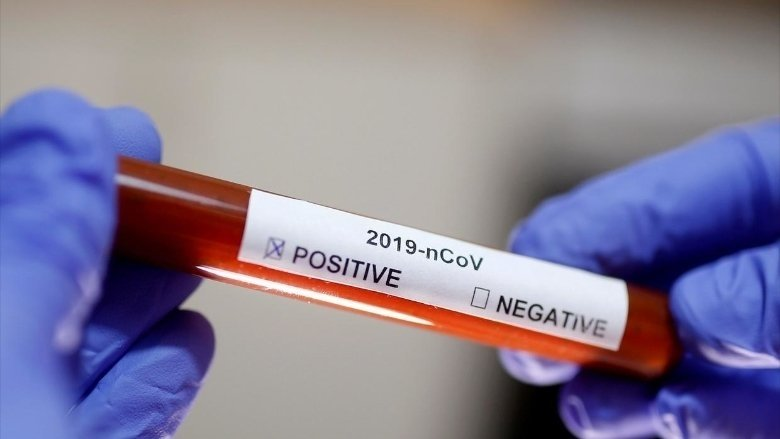 بلدية شحيم: 3 اصابات مثبتة وفحوص PCR لمئة شخص اليوم