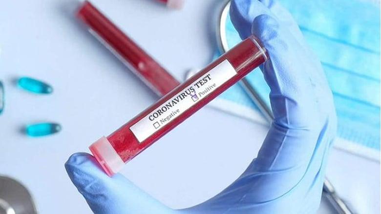 الولايات المتحدة تشهد أكبر زيادة يومية في الإصابات بكورونا بتسجيل أكثر من 45 ألف حالة