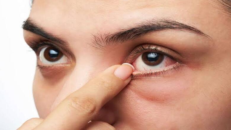 8 علامات في العين تكشف عن حالات صحية خطيرة